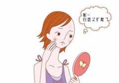 昆明女性治疗白癜风有哪些误区